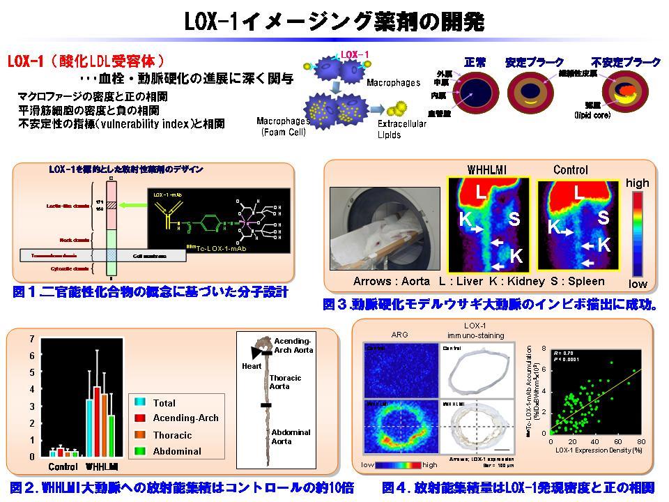LOX-1